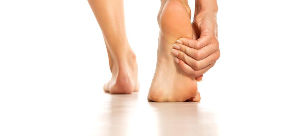 Primer plano de pies de mujer afectados por callos en los pies